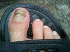 灰指甲的正确护理方法